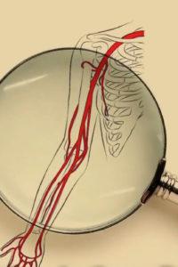 Le anomalie vascolari